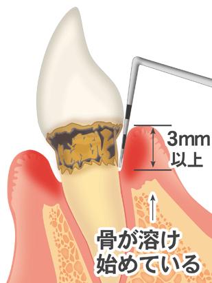 http://www.shika-sozai.com/illust85/