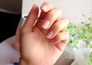 爪の縦線の原因は何?黒色は病気の信号かも!